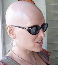 230px-AlopeciaTotalis