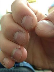 230px-Nail_and_cuticle_bitting