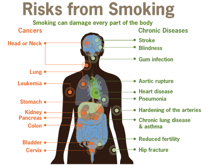 745px-Risks_form_smoking-smoking_can_damage_every_part_of_the_body