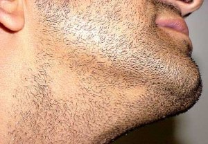 alopecia_areata1_beard