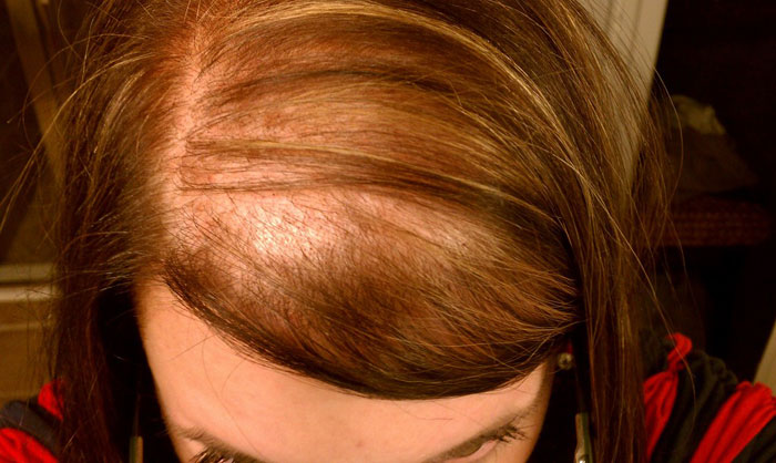 Female Hair Loss Diff Alopecia Androgenetic