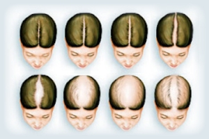 Female-Pattern-Hair-Loss1